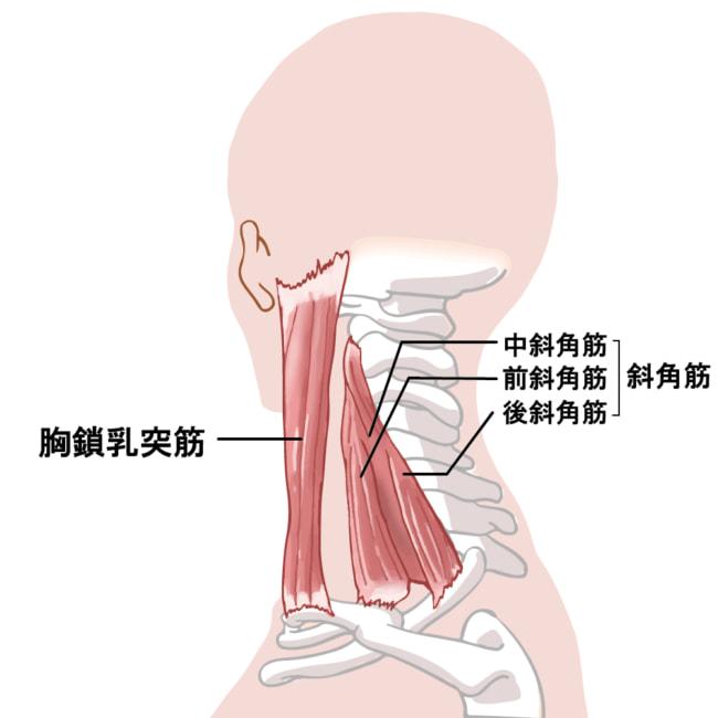 斜角筋症候群 | やさか鍼灸治療...
